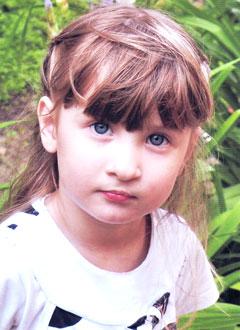 Варя Стулова, 3 года, рубцовая деформация после пластической реконструкции губы и носа, требуется операция. 234400 руб.