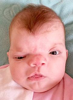 Элина Пелиева, 5 месяцев, деформация черепа, требуется лечение специальными шлемами. 180000 руб.
