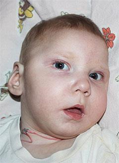Вика Титомир, 1 год, симптоматическая эпилепсия, детский церебральный паралич, требуется лечение. 199620 руб.