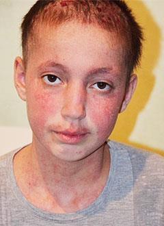 Фариза Дакаева, 15 лет, системная красная волчанка, требуются лекарства. 254080 руб.