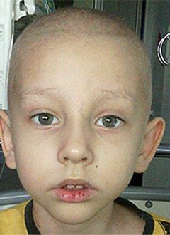 Сева Казаков, 5 лет, острый миелобластный лейкоз, требуются лекарства. 944302 руб.