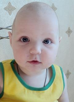 Маша Спирина, 1 год, врожденная деформация черепа, спасет операция, требуются обследование, подготовка к операции и специальные пластины. 290000 руб.