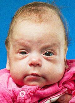 Вирсавия Порошина, 6 месяцев, ретинопатия недоношенных 2-3 степени, отслойка сетчатки, требуются операции. 217424 руб.