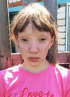 Ангелина Елисеева, 11 лет, деформация глазниц, черепно-мозговая грыжа, требуется операция. 198000 руб.