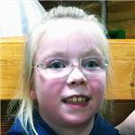 Лада Литвин, детский церебральный паралич, спастическая диплегия, вывих правого бедра, требуется инвалидная коляска, 199966 руб.
