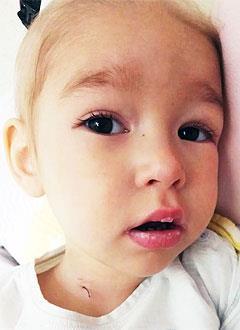 Саша Николаева, 2 года, редкое генетическое заболевание – лейкодистрофия, требуется реабилитационное лечение после трансплантации костного мозга в Университетской клинике Хадасса (Иерусалим, Израиль). 1550663 руб.