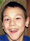 Леша Иванов, 15 лет, детский церебральный паралич, требуется курсовое лечение. 180000 руб.