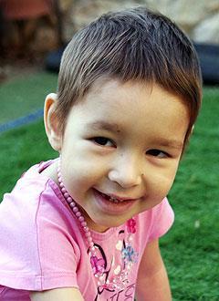 Саша Николаева, 3 года, редкое генетическое заболевание – лейкодистрофия, требуется лечение в Университетской клинике Хадасса (Иерусалим, Израиль). 913814 руб.