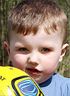 Кирилл Крупнов, 3 года, врожденная правосторонняя косолапость, рецидив, требуется лечение. 151900 руб.