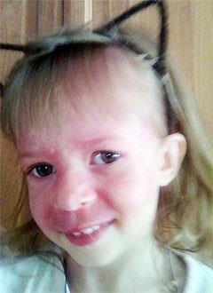 Яна Невенченко, 4 года, синдром Штурге – Вебера (капиллярная мальформация лица, шеи, туловища и конечностей), требуется лечение. 300000 руб.