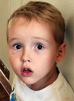 Марк Альмухаметов, 3 года, Spina bifida – врожденный порок развития спинного мозга, требуется курсовое лечение. 658317 руб.