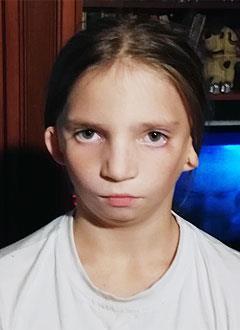 Настя През, 10 лет, синдром Тричера Коллинза, недоразвитие челюсти, сужение зубных рядов, требуется ортодонтическое лечение. 320000 руб.