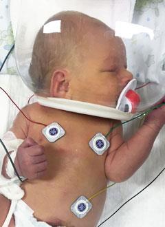 Платон Волков, 5 дней, тяжелый врожденный порок сердца, спасет операция. 534250 руб.