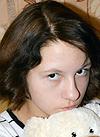 Вика Жукова, 13 лет, прогрессирующий правосторонний грудной сколиоз 4-й степени, требуется операция. 716494 руб.
