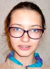 Настя Ивахина, 16 лет, недоразвитие нижней челюсти, нарушение прикуса, требуется ортодонтическое лечение. 200000 руб.