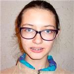 Настя Ивахина, недоразвитие нижней челюсти, нарушение прикуса, требуется ортодонтическое лечение, 200000 руб.