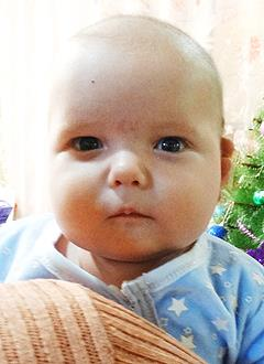 Тима Сергушев, 4 месяца, врожденная двусторонняя косолапость, требуется лечение по методу Понсети. 151900 руб.